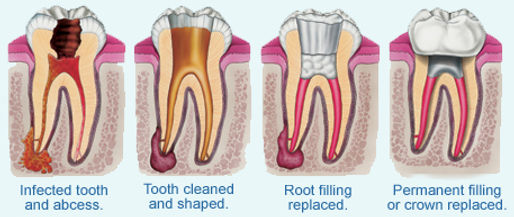 Stages of root canal treatment, infected tooth and abcess, tooth cleaned and shaped, root filling replaced, permanent crown placed