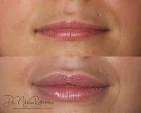 Lippenunterspritzung vorher nachher