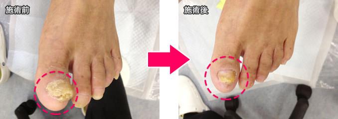 ドクターネイル東京 肥厚爪2
