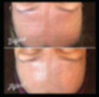 before after derma.jpg