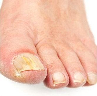 Грибок на ногтях из за иммунитет