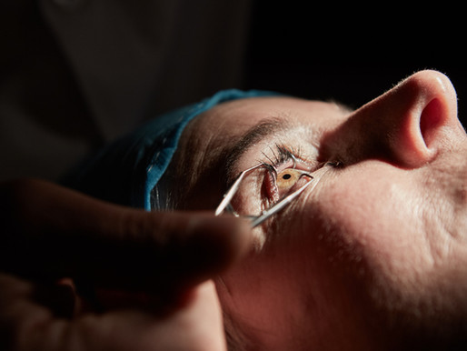 10 Things You Did Not Know about Cataract Surgery