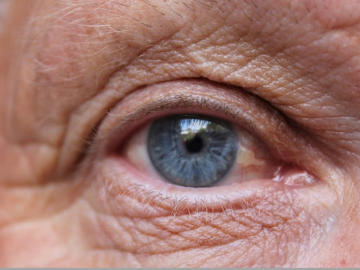 Opening Your Eyes to Age-Related Macular Degeneration (AMD)