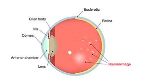 diabetic-retinopathy2.png