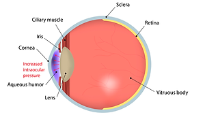 Glaucoma-2.png