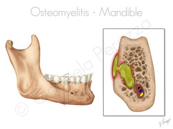 Osteomyelitis of Jaw
