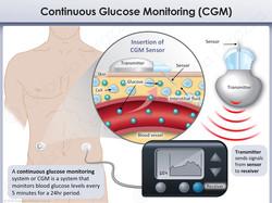 Diabetes CGM