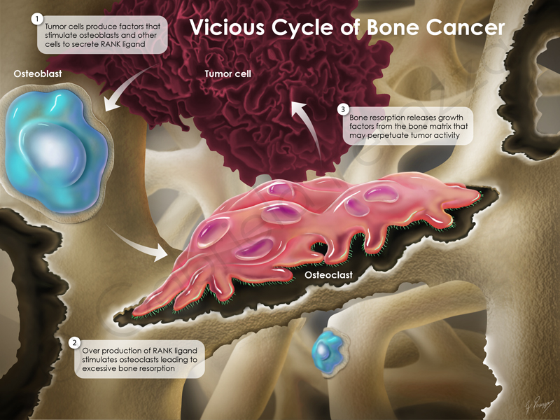 Bone Cancer Cycle