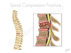 Spinal Compression