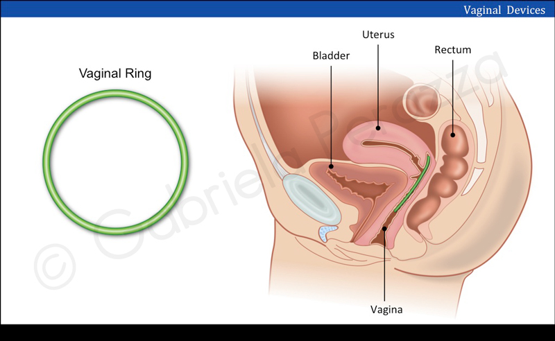 Vaginal Devices