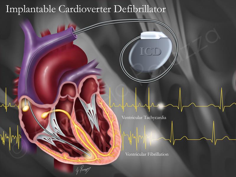 Heart ICD