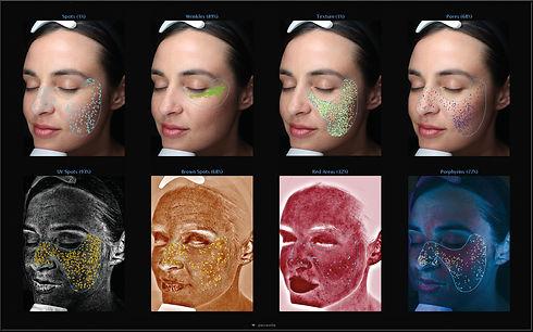 Kalvera Skin Analysis.jpg