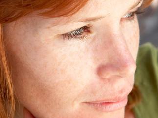 Rosazea: Hartnäckige Entzündungen im Gesicht