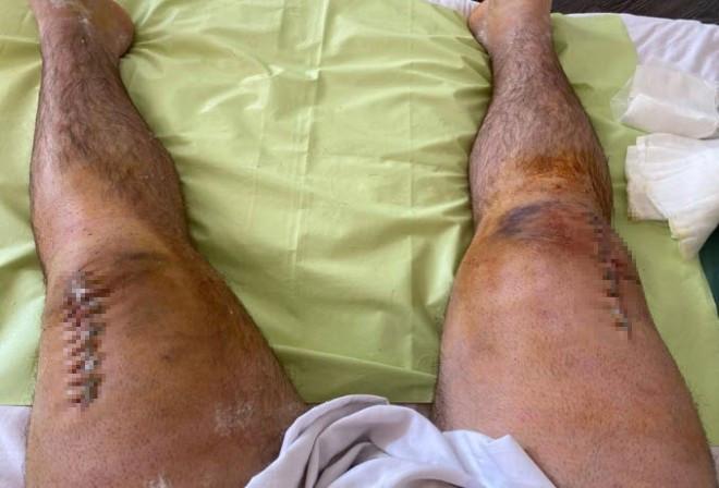Chấn thương khiến lực sĩ người Nga phải khâu rất nhiều mũi |VUA-THE-THAO