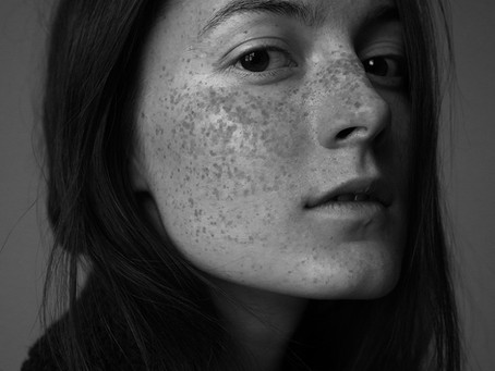What is Pigmentation?