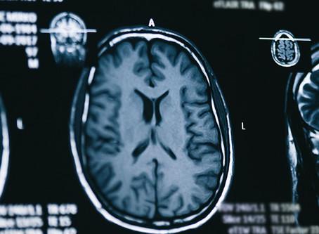 Link Between Scam and Dementia