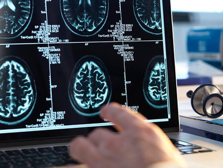 Countering Age-Related Memory Loss with Brain Stimulation