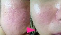 單次美容優惠療程,陶瓷肌,敏感肌,根治暗瘡,治凹子洞,膚色不均,毛孔粗大,黑頭粉刺,jetso beauty,著數美容站