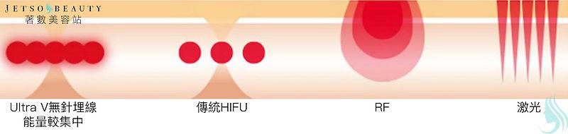 單次美容優惠療程,美容平台,韓國原廠,Ultra V-Lift,無針埋線,ultra v,不限線數,V面,瘦面,jetso beauty,著數美容站