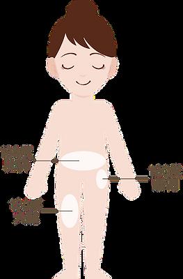 單次美容優惠療程,美容平台,深層溶脂,收緊鬆弛,窈窕,瘦身,纖體,纖型,減肥,瘦手臂,瘦大腿,瘦小腿,瘦肚,燒脂,消脂,溶脂,vanquish,隔空溶脂,jetso beauty,著數美容站