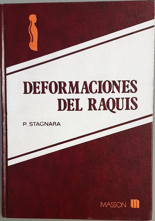 Deformaciones del Raquis | Stagnara, P.