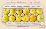 3563eddfb5bd7e2c_signs-of-breast-cancer.