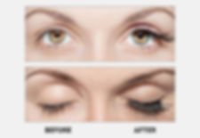 Latisse-eyelashes.jpg