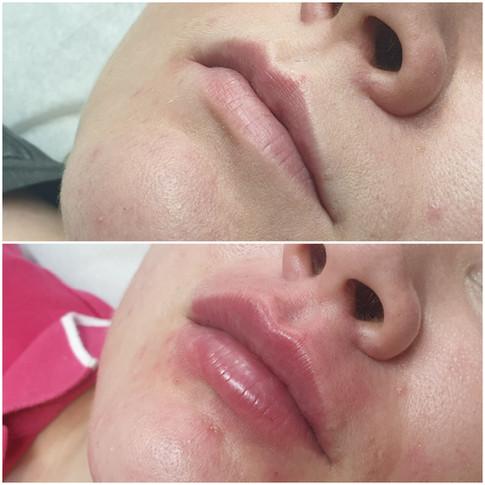 Hyaluron Pen/huulten täyttö