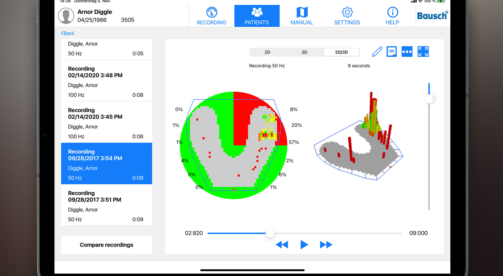 OccluSense iPad App
