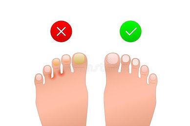 Toe nail fungus and athelete's foot