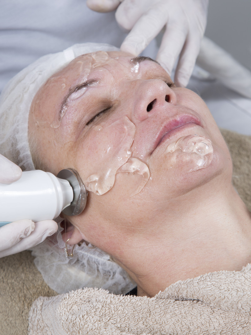 Laser And Ultrasound Facial Treatment-Mi