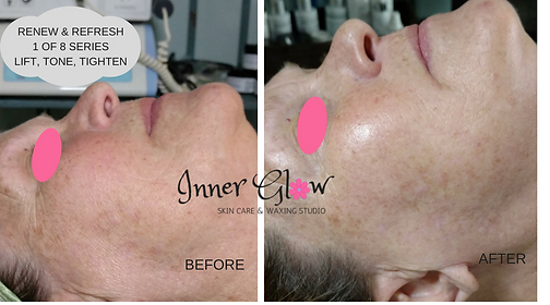 Microcurrent,lunch time lift, non-surgical lift facial before & after