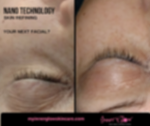 NanoTechnology Skin refining treatment, before and after 1 Nano Skin Infusion at Inner Glow Skin Care located in Conifer Colorado