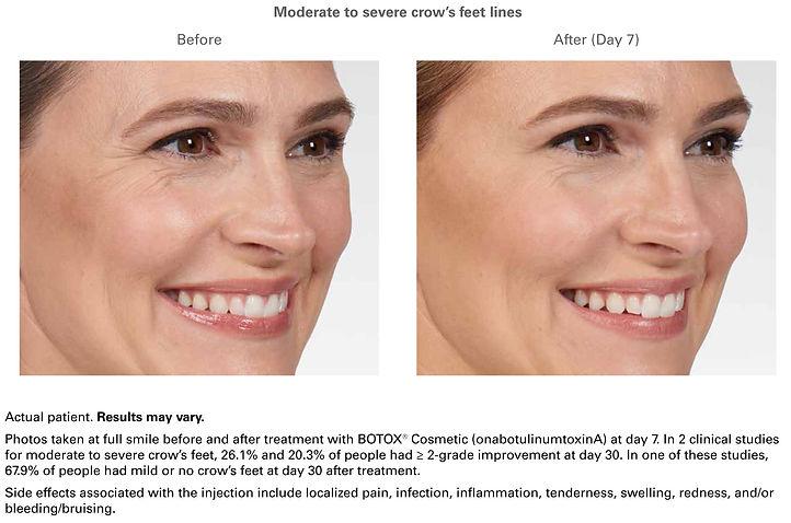botox-ba1.jpg