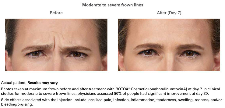 botox-ba2.jpg