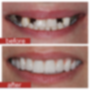 beforeafter13-e1427506984161.png