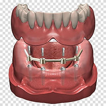 dentures-dental-implant-prosthesis-denti