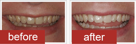 before-after-laser.png