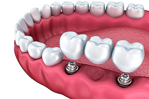 Dental-Implants-and-Prosthesis.jpg