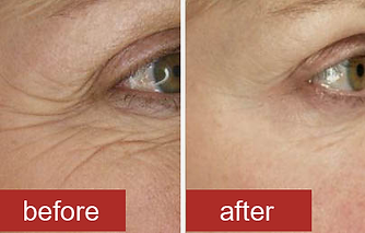 botox-before-after-crows-feet.png