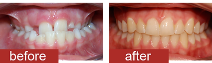 Orthodontic-treatment-before-and-after-5