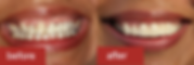 crown-and-bridge-case-1-smiling.png