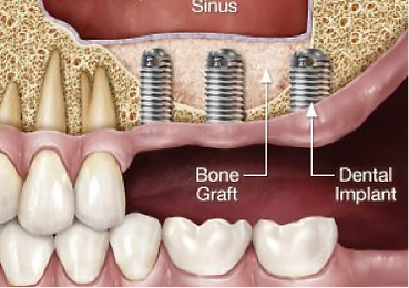 dental-implant-sinus-lift.png