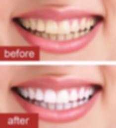 teeth-whitening-before-and-after.png