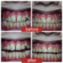 before-after-teen-orthodontics.png