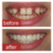 Implant-before-and-after.png
