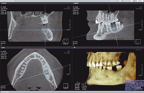 CT-screen_large.jpg