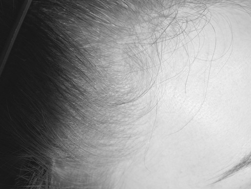 Scalp Micropigmentation. An effective solution enhancing Female Hair Density