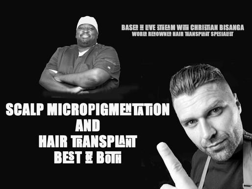 Scalp Micropigmentation versus Hair Transplant