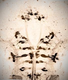 Spinal backfills